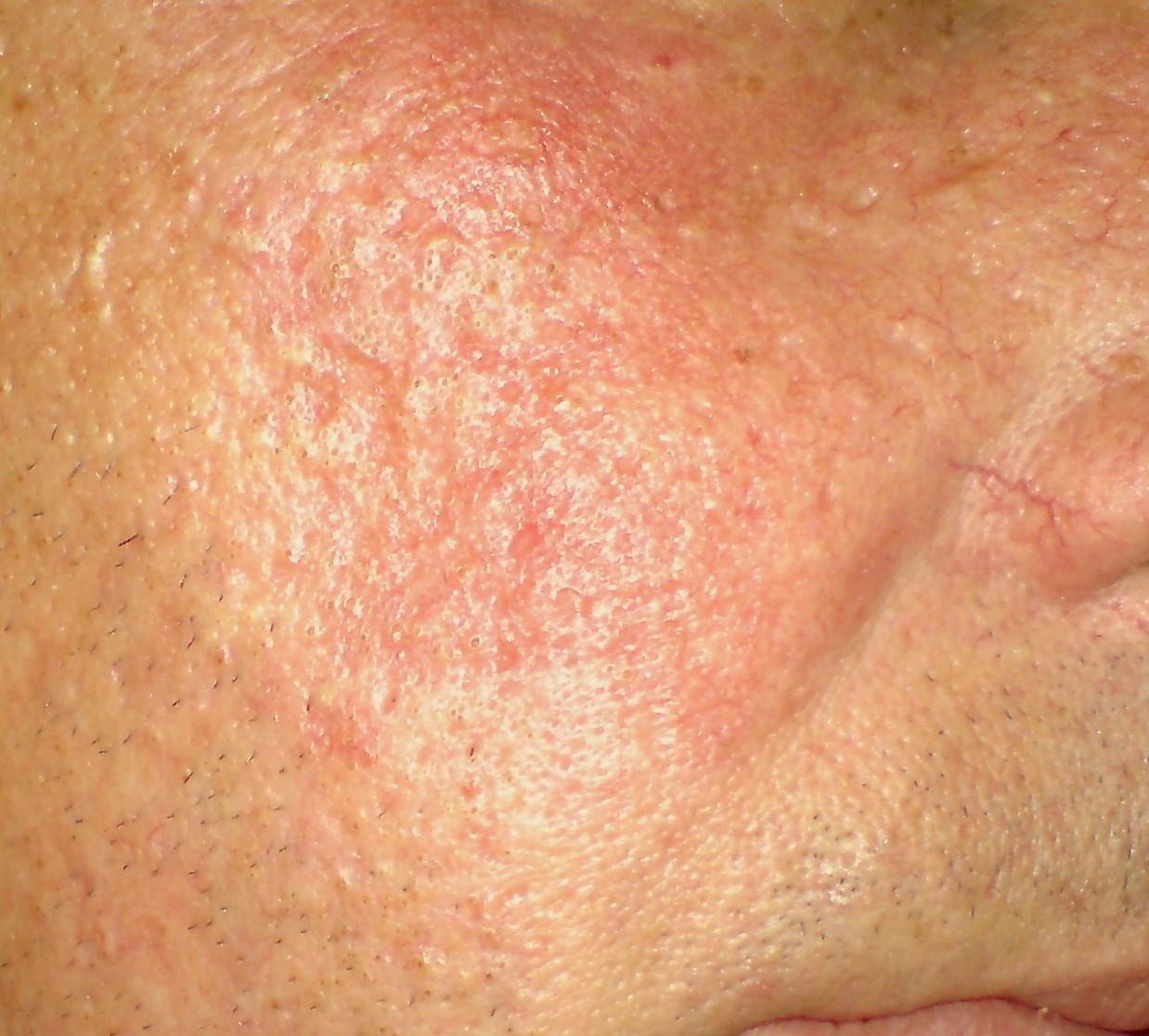 Дерматолог - Розацеа (Acne rosacea,розовые угри)